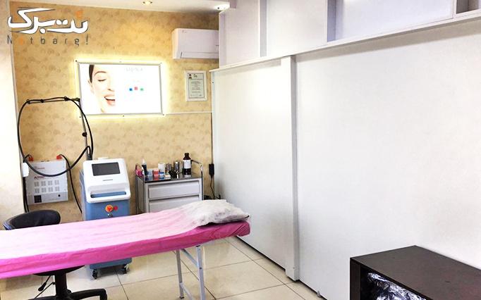 لیزر الکساندرایت آلما در مطب دکتر سید پیمان شریعتی