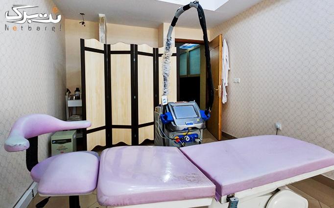 لیزر الکساندرایت موتوس در مطب دکتر اکبری