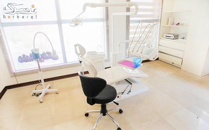 جرم گیری دو فک دندان در مطب دکتر فضائلی