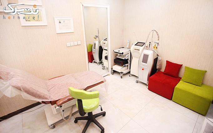 لیزر دیالکس در مطب دکتر علیخانی