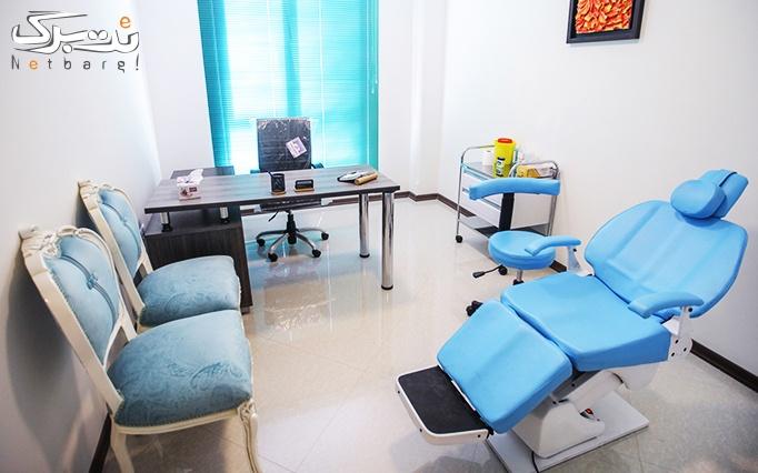 لیزر الکساندرایت در مطب دکتر گلی