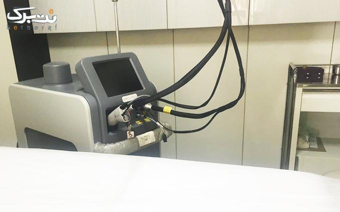 لیزر الکس ویژه نواحی بدن در مطب دکتر مرادی حقیقت
