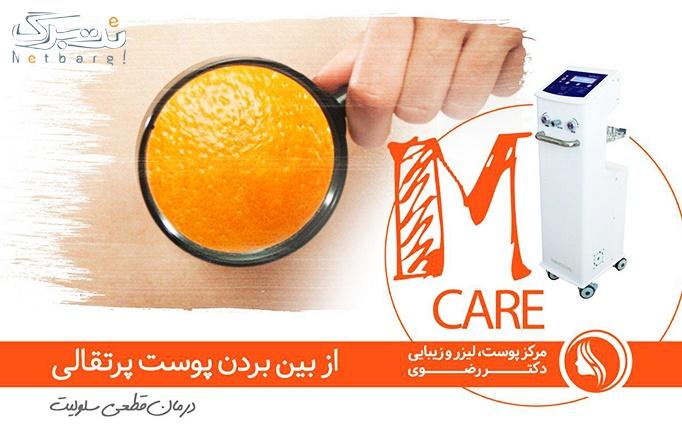 لاغری با دستگاه mcare توسط دکتر رضوی