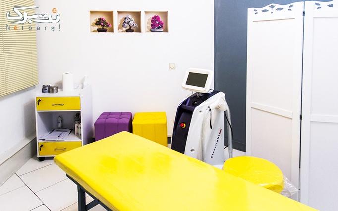 کرایولیپولیز در مطب دکتر شالچی تبریزی