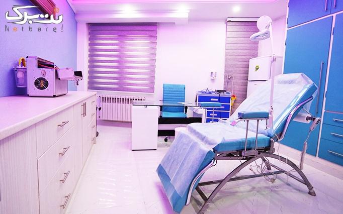 مزوتراپی در مطب دکتر جمالی خوئی