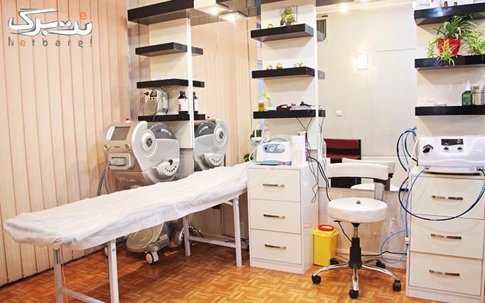 میکرونیدلینگ در مطب دکترجمشیدی