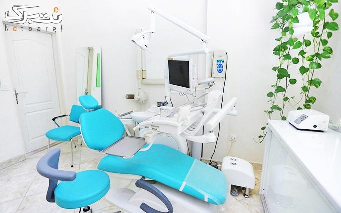 پر کردن دندان در مطب دکتر ندیمی