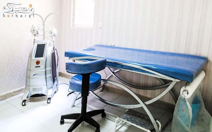 لیزر ایلایت در مطب دکتر مطلبی