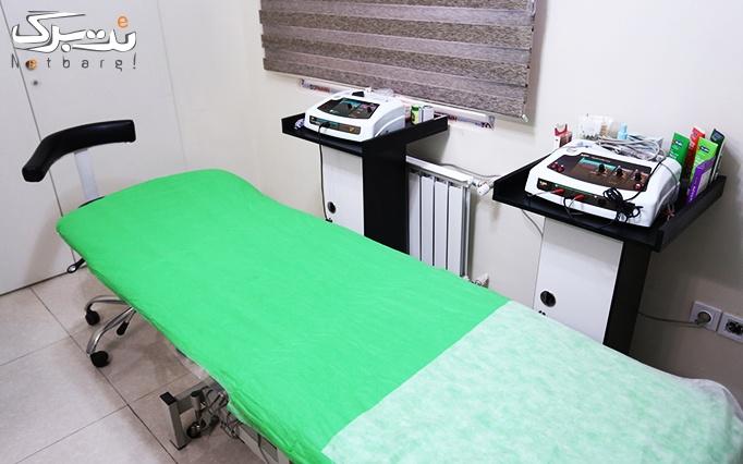 میکرودرم پوست در مطب دکتر شبنم ایزدی