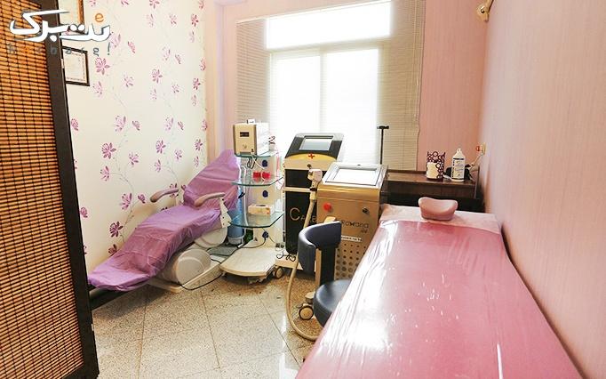 کربوکسی تراپی در مطب دکتر دستنبو