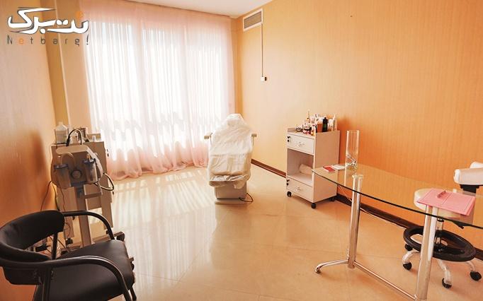 پاکسازی پوست با میکرودرم در مطب دکتر پاکیده