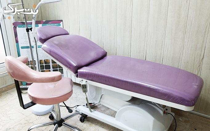 لیزر SHR در مطب دکتر حدودی