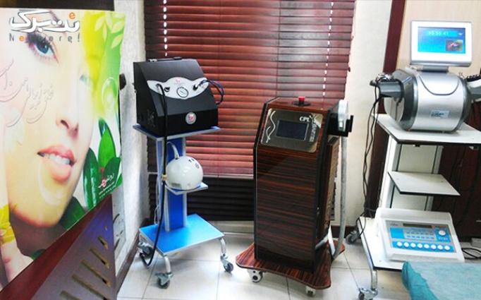 لیزر IPL در کلینیک روناس طب