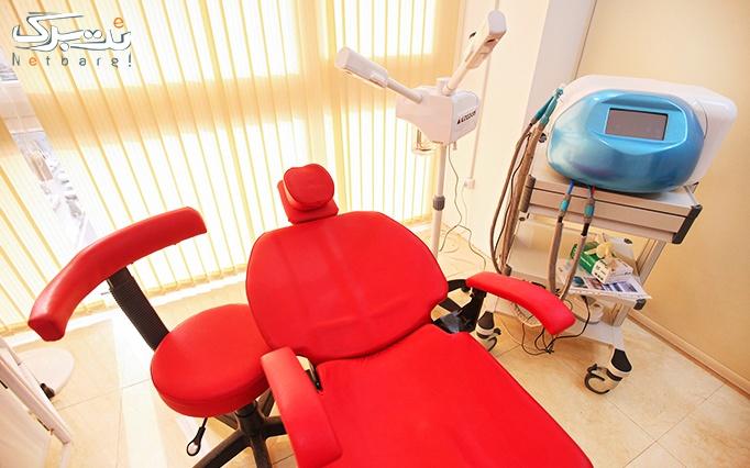 میکرودرم در مطب دکتر عفیفه پور