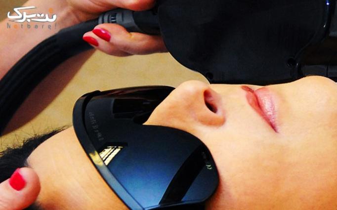 لیزر موهای زائد در کلینیک پر