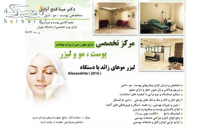 لیزر الکساندرایت در مطب دکتر فتح آبادی