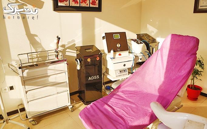دستمزد تزریق بوتاکس در مطب دکتر ولی منشی