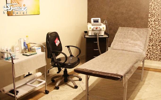 لیزر IPL  (نواحی بدن) در مطب دکتر عسگری