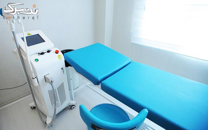 لیزر دایود در مطب دکتر علائی