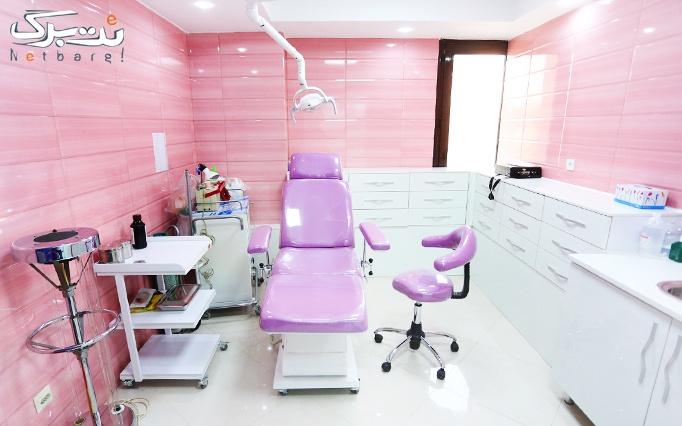 لیزر الکساندرایت در مطب خانم دکتر ساعدپناه