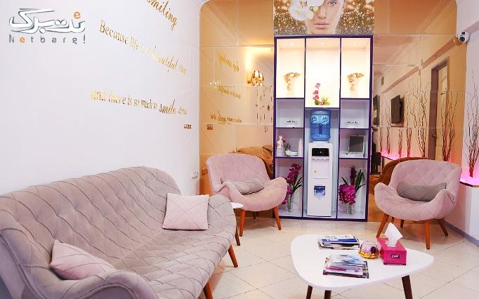 میکرودرم در مطب دکتر بیات مختاری