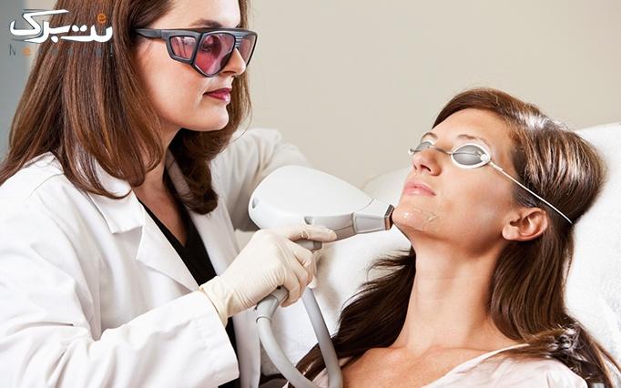 لیزر SHR ویژه زیر بغل در مطب دکتر موسوی