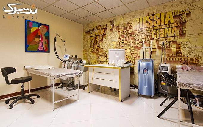 میکرودرم صورت در مطب دکتر قادسی