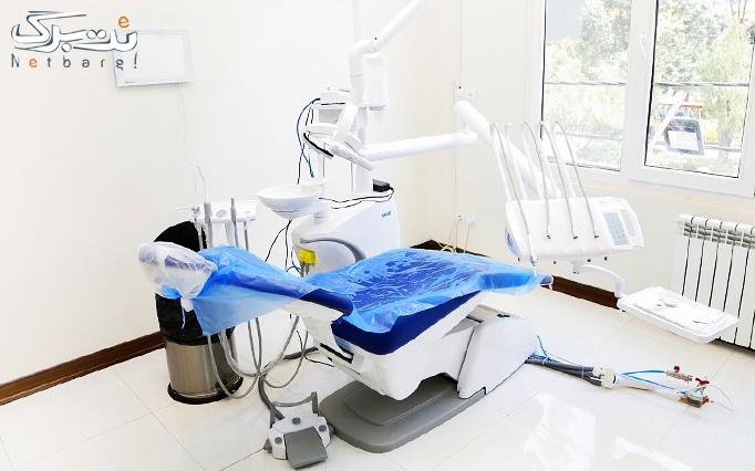 جرم گیری و بروساژ دندان در مطب دکتر معصومی