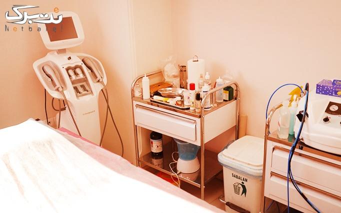 لیزر الکساندرایت در مطب دکتر دریاباری
