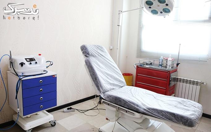 دستمزد تزریق ژل در مطب دکتر آقامیری