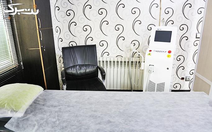 دستمزد تزریق بوتاکس کنیتوکس در مطب دکتر موسوی