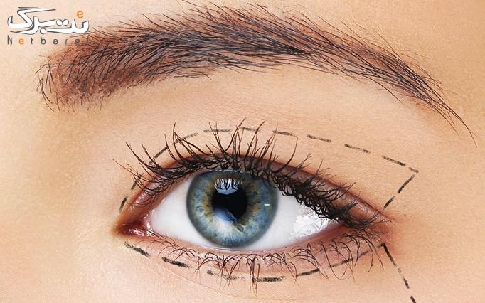 پلاسما جت برای رفع افتادگی پلک چشم با دکتر سلیمانی