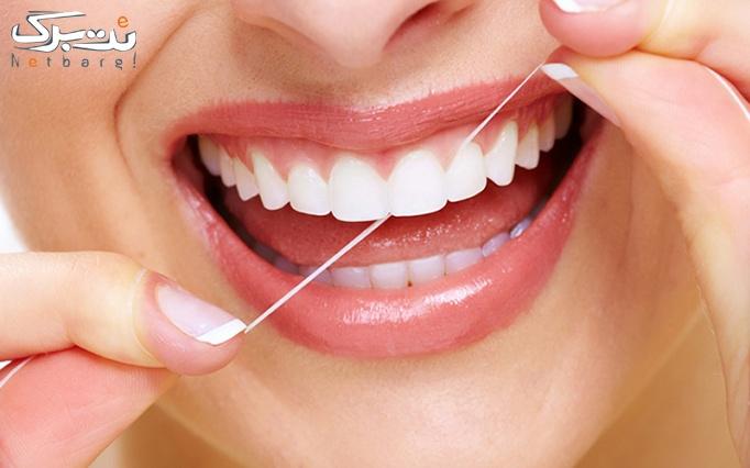 جرم گیری و بروساژ دندان در مطب دکتر امیری نژاد