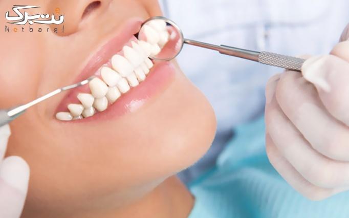 جرم گیری دو فک با بروساژ دندان در مطب دکتر مرتضوی