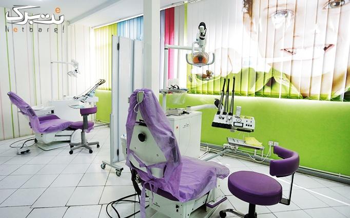 کامپوزیت دندان در مطب دکتر مرتضوی کلانتری