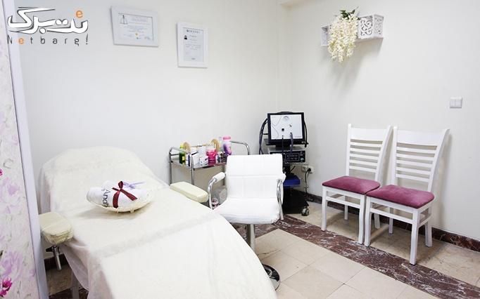 لیزر الکساندرایت در مطب دکتر ملکیاری