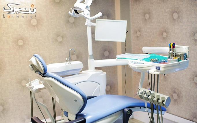 جرمگیری دندان بلیچینگ دندان در مطب دکتر سمسارزاده