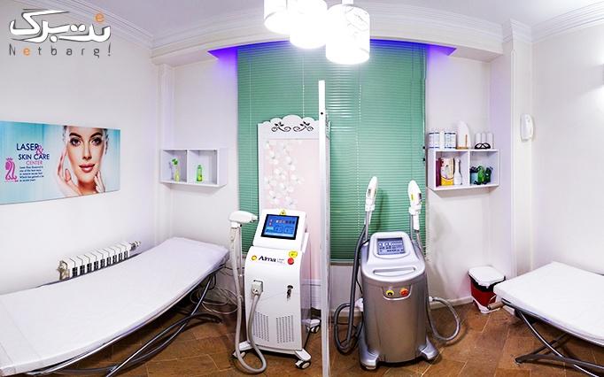 لیزر دایود در مطب دکتر بابائی