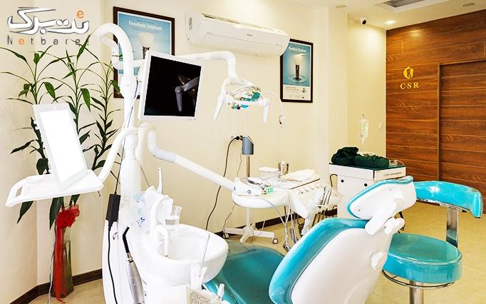 جرم گیری دندان در مطب دکتر ساعتچی