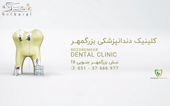 جرمگیری و بروساژ در کلینیک دندانپزشکی بزرگمهر