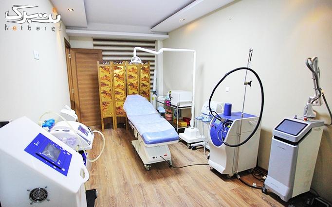 لیزر الکساندرایت کندلا در مطب دکتر حقایقی