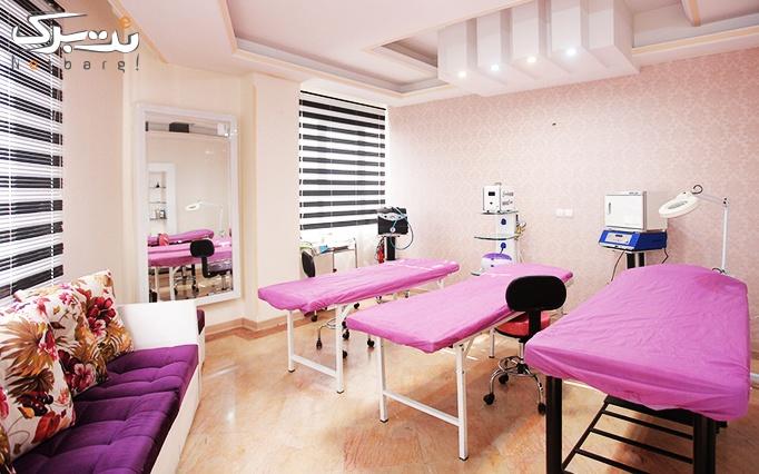 لیزر IPL در مطب دکتر بوجاری