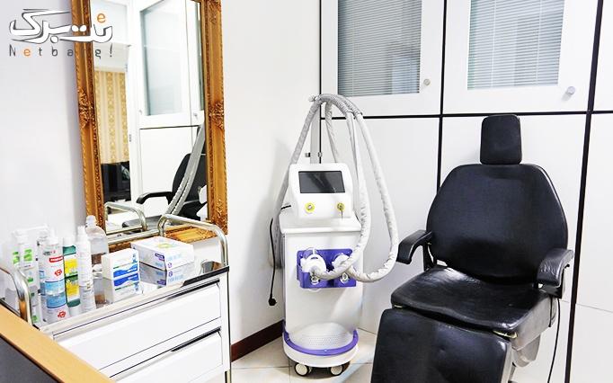 لاغری با کرایولیپولیز در مطب دکتر پاشاپور