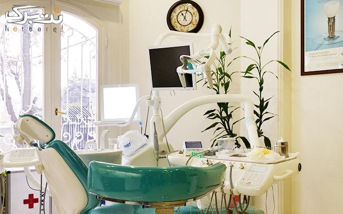 لمینت کامپوزیت دندان در مطب دکتر ساعتچی