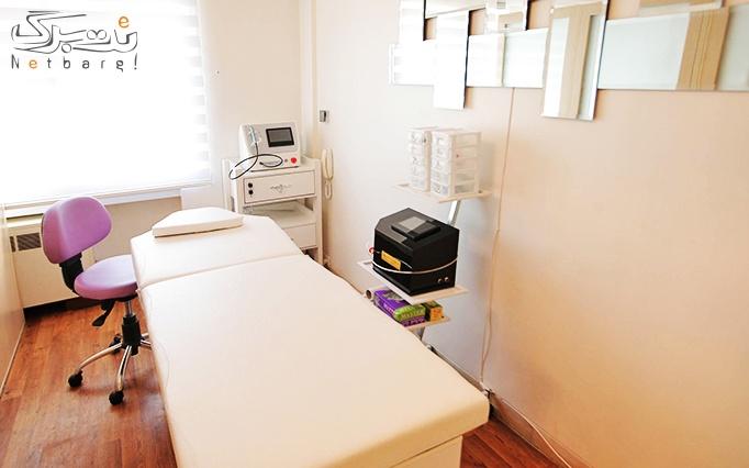 میکرودرم پوست در مطب دکتر سلمانی