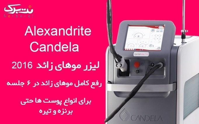 الکساندرایت در مطب دکتر قنبر پور