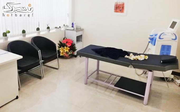 لیزر الکساندرایت 2019 در مطب دکتر پژمان