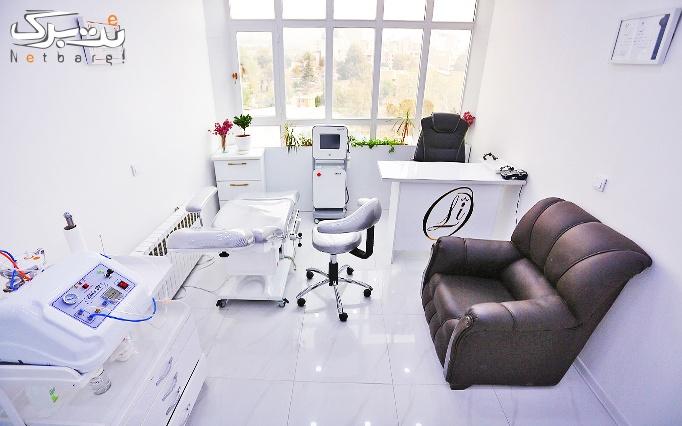 میکرودرم پوست در مطب دکتر تهامی