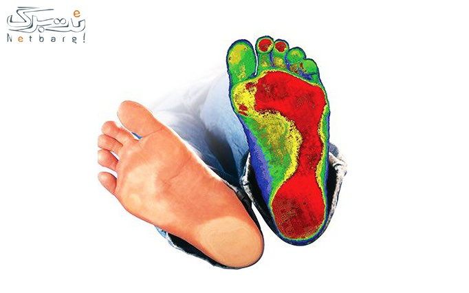 اسکن کف پا در کلینیک کاویان طب