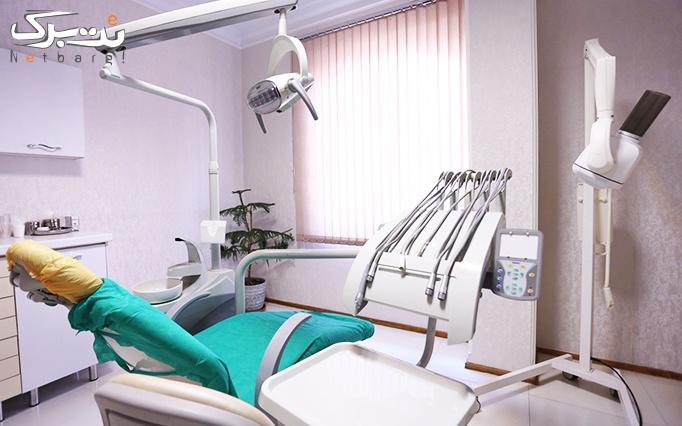 جرم گیری دندان و بروساژ دندان در مطب خانم دکتر عرب